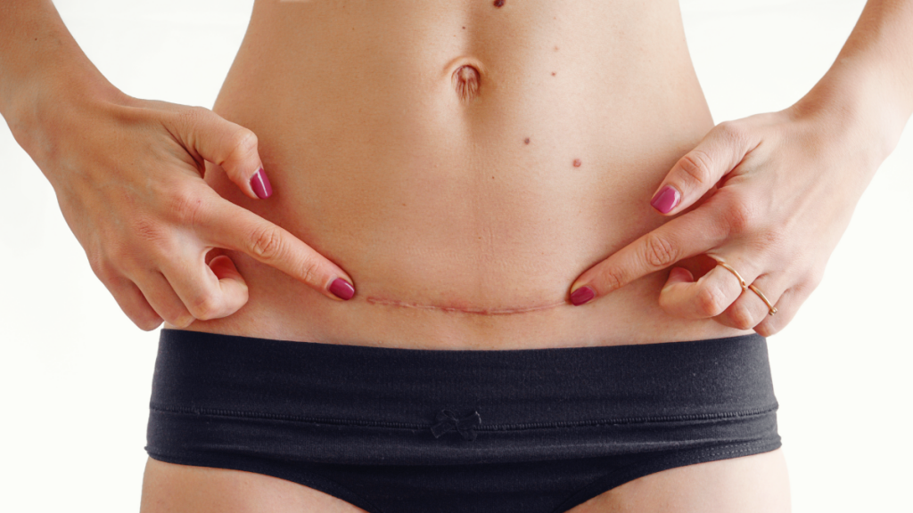 C-Sections: Five Things No One Ever Tells You